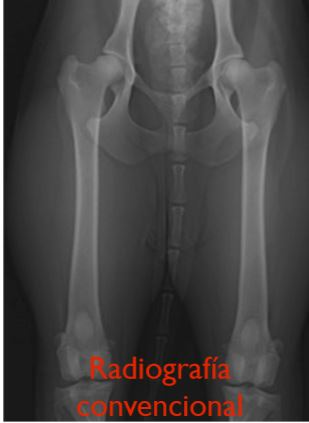 Radiografías PennHip
